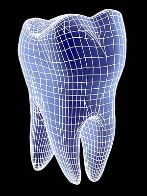 Molar Tooth Art Print by Pasieka