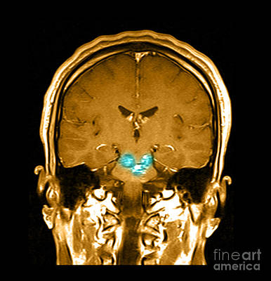 Brain Tissues Photograph - Mri Brainstem Cavernous Malformations by Medical Body Scans