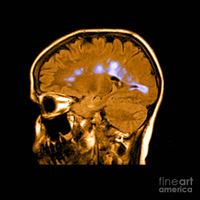Mri Of Multiple Sclerosis Art Print