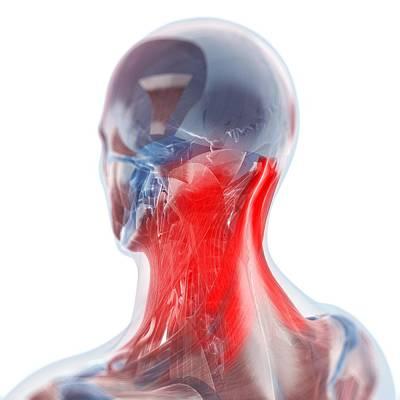 Human Joint Digital Art - Neck Pain, Conceptual Artwork by Sciepro