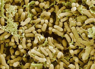 Nitrogen-fixing Bacteria, Sem Art Print by Steve Gschmeissner