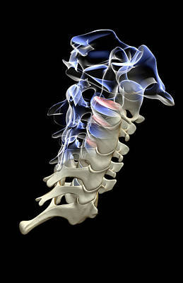 X-ray Image Digital Art - The Cervical Vertebrae by MedicalRF.com