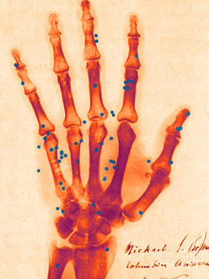 Photograph - X-ray Of Gunshot In The Hand by Science Source