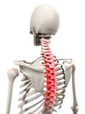 Back Pain, Conceptual Artwork Art Print by Sciepro