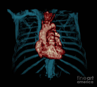 Reconstruction Photograph - 3d Ct Reconstruction Of Heart by Medical Body Scans