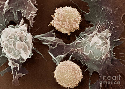 Photograph - Cancer Cells by Science Source