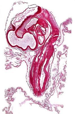 Bird Brain Photograph - Chicken Embryo, Light Micrograph by Dr Keith Wheeler