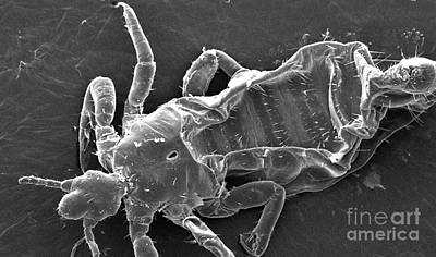 Head Louse Photograph - Head Louse by Science Source
