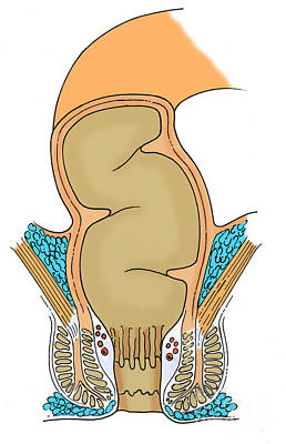 Anal Photograph - Illustration Of Rectum by Science Source