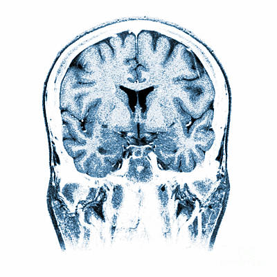Normal Coronal Mri Of The Brain Art Print by Medical Body Scans