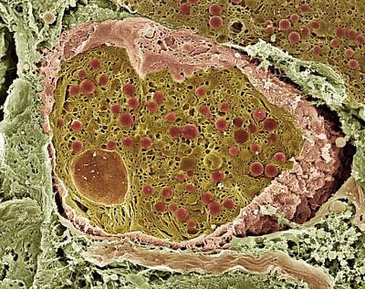 Er Images Photograph - Pancreas Cell, Sem by Steve Gschmeissner