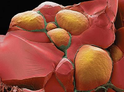 Thyroid Gland, Sem Print by Steve Gschmeissner