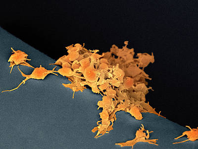 Activated Platelets, Sem Print by Steve Gschmeissner