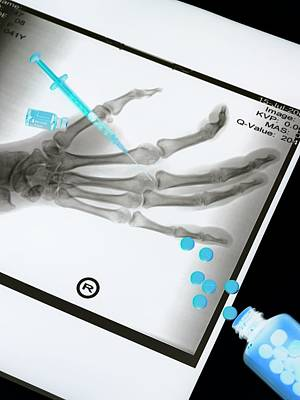 X-ray Image Photograph - Medical Treatment, Conceptual Image by Tek Image