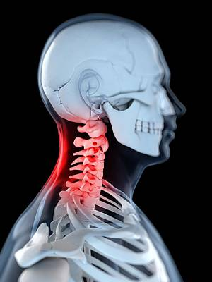 X-ray Image Digital Art - Neck Pain, Conceptual Artwork by Sciepro