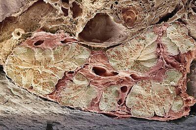 Pancreas Tissue, Sem Art Print by Steve Gschmeissner