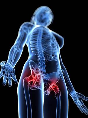 Hip Pain, Conceptual Artwork Print by Sciepro