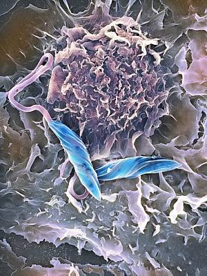 Macrophage Attacking A Foreign Body, Sem Art Print by