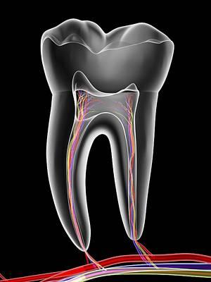 X-ray Image Photograph - Molar Tooth by Pasieka