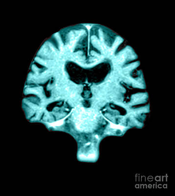 Brain Tissues Photograph - Mri Of Brain With Alzheimers Disease by Medical Body Scans