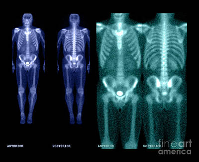 Medical Image Photograph - Bone Scan by Medical Body Scans