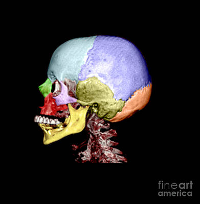 Human Skull Art Print by Medical Body Scans