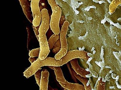 Campylobacter Pyloridis Photograph - Helicobacter Pylori Bacteria, Sem by