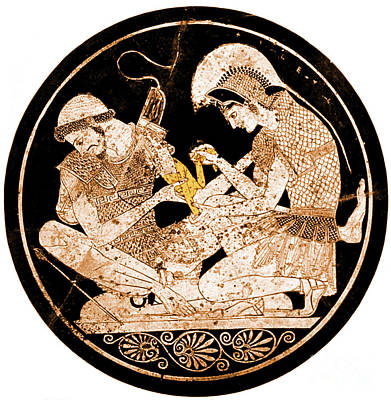 Photograph - Achilles Tending Patroclus Wounds by Science Source
