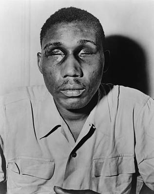 African American Man With Eyes Swollen Art Print by Everett