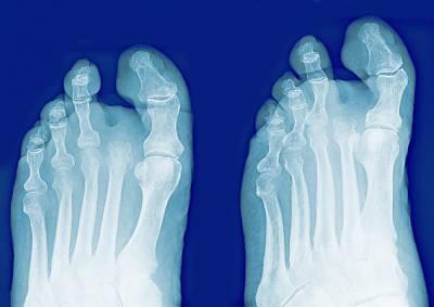 X-ray Image Photograph - Amputated Toe, X-rays by Miriam Maslo