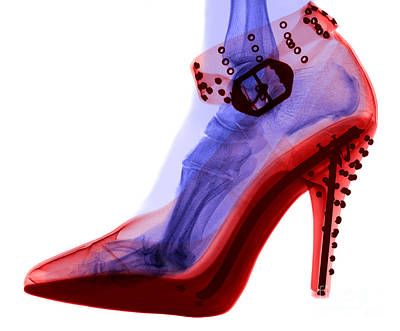 Photograph - An X-ray Of A Foot In A High Heel Shoe by Ted Kinsman