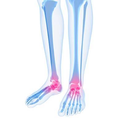 Human Joint Digital Art - Ankle Pain, Conceptual Artwork by Sciepro
