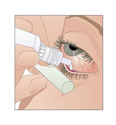 Bloodshot Photograph - Applying Eye Drops, Artwork by Peter Gardiner