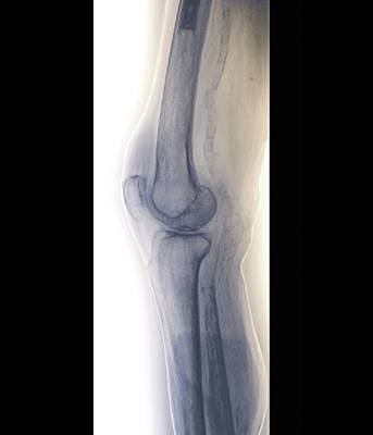 Inflamed Wall Photograph - Arteritis Of The Knee, X-ray by Zephyr