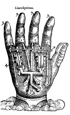 Artificial Hand Designed By Ambroise Art Print by Science Source