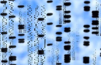 Artwork Of An Autoradiogram Showing Dna Sequences Art Print