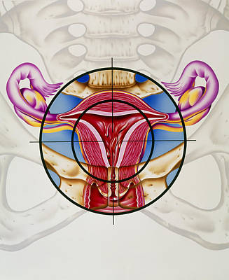 Artwork Of The Uterus During Menstruation Art Print by John Bavosi