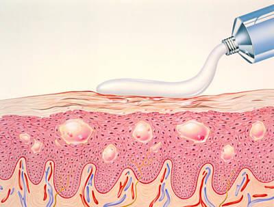 Artwork Of Topical Cream Applied To Eczema Art Print by John Bavosi