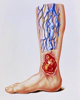 Artwork Of Varicose Veins & Ulcer On Leg Art Print by John Bavosi