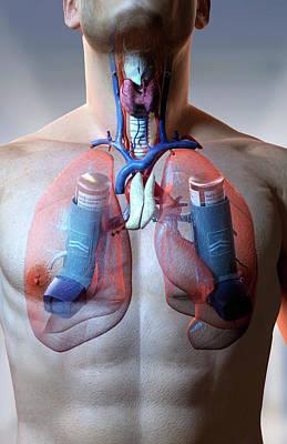 Human Body Digital Art - Asthma by MedicalRF.com