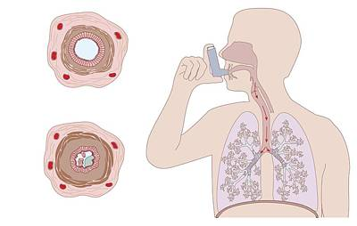 Asthma Pathology And Treatment, Diagram Art Print by Peter Gardiner