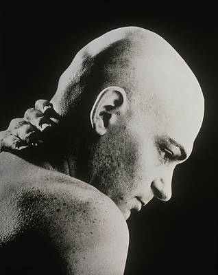 Bald Man Holding His Neck Suffering From Pain Art Print