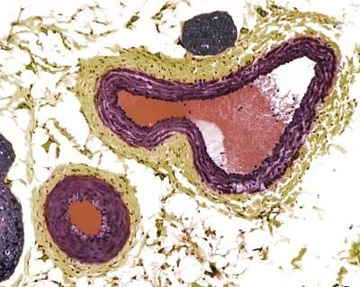Blood Vessels, Light Micrograph Art Print by Steve Gschmeissner