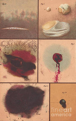 Bloodstain, Blisters, Bullet Holes, 1864 Art Print by Science Source