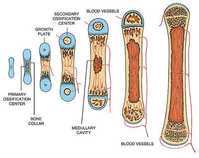 Bone Growth Art Print by Science Source