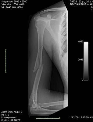 Broken Arm Bone, Digital X-ray Art Print by Du Cane Medical Imaging Ltd