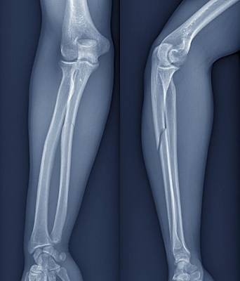 X-ray Image Photograph - Broken Arm, X-ray by Zephyr