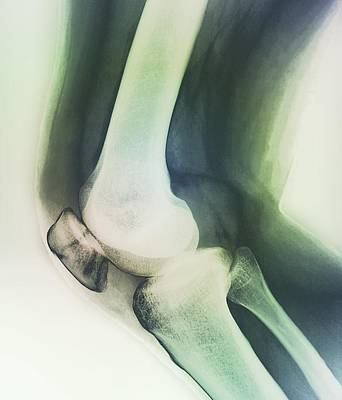Broken Knee, X-ray Print by Zephyr