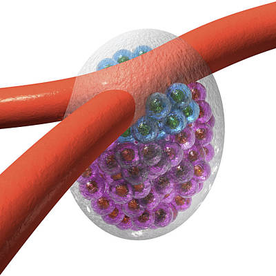 Cancer Stem Cells And Capillary, Artwork Art Print by Laguna Design