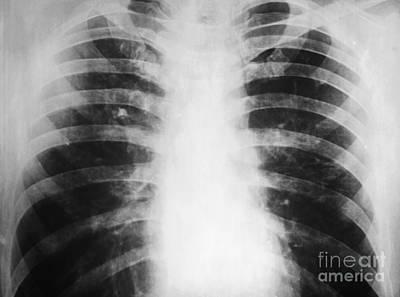 Candidiasis, X-ray Art Print